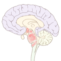 Brain Small McGarry Brain Autopsy.jpg