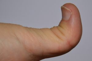 Ehlers-Danlos syndrome - Thumb