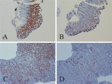 Enterovirus VP1 and dsRNA in stomach. John Chia 2015 paper.png